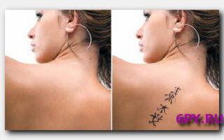 Как вывести татуировку-народные способы