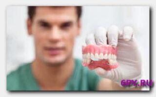 Статья. Имплантация зубов