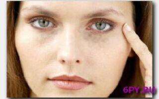 Статья. Причины появления и методы устранения черных пятен под глазами