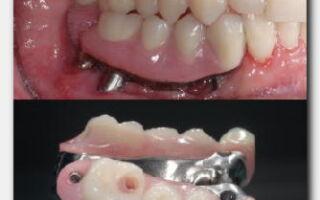 Мост на зубы-о процедуре