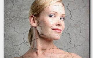 Статья. Внешние и внутренние причины сухости кожи на лице
