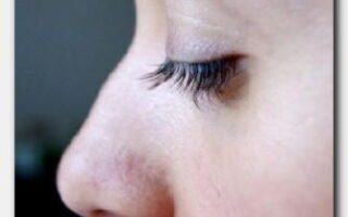 Статья. Горбинка на носу – стоит ли исправлять и если да, то как?