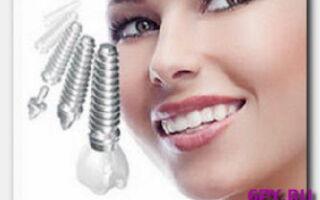 Статья. Зубные имплантанты – выбираем подходящий вариант