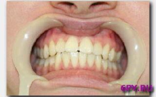 Статья. Киста на корне зуба: избавляемся от боли