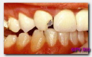 Статья. Советы, что нужно делать, если откололся кусочек зуба