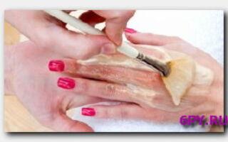 Статья. Почему возникает шелушение между пальцами рук? Причины недуга и способы избавления от него