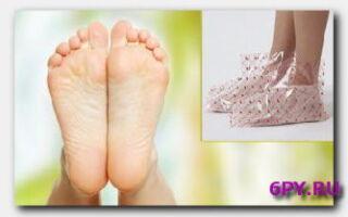 Статья. Педикюрные носки: показания к использованию, применение, результативность
