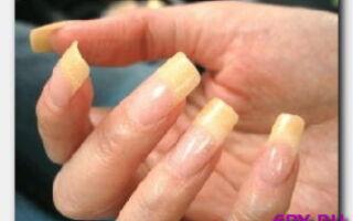 Статья. Почему ногти на руках желтеют?