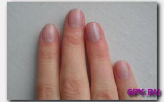 Статья. Синеют ногти на руках: причины и лечение