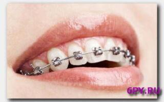 Статья. Как исправить кривые зубы: выбираем методы выравнивания зубного ряда