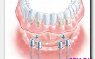 Статья. Зубная боль после протезирования – что делать?