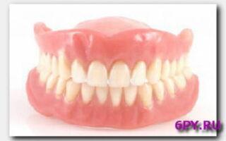 Статья. Какими бывают зубные протезы и чем они между собой отличаются