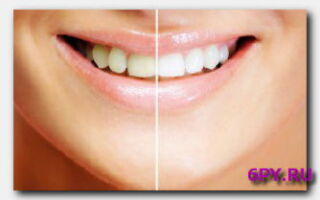 Статья. Деформации зубов и прикуса: исправляем самыми популярными способами